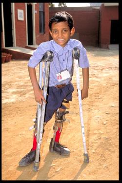 Poliomyelitis India