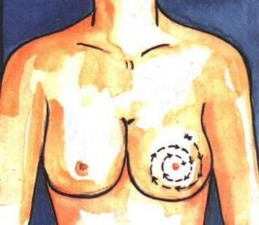 การตรวจมะเร็งเต้านมด้านรักแร้