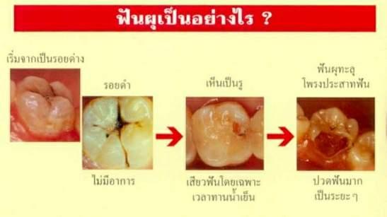 ฟันผุเป็นอย่างไร